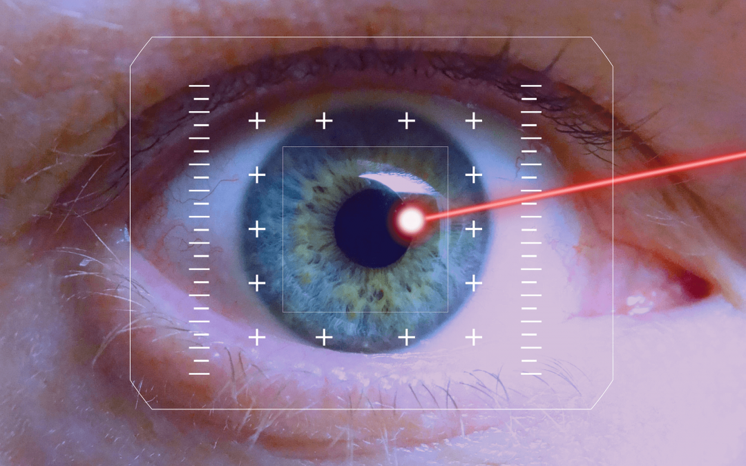 LASIK and Refractive Surgery