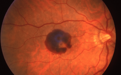 An Overview of Macular Degeneration