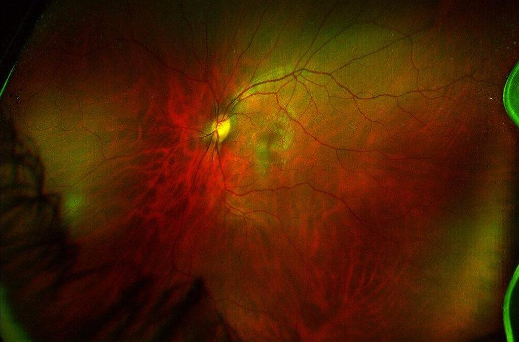 Dilated Eye Exams and Retinal Health