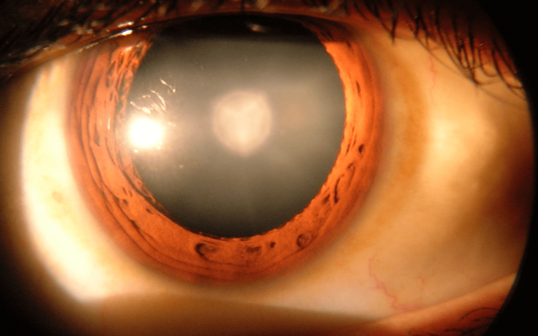 Causes for Cataracts (Other than Aging)